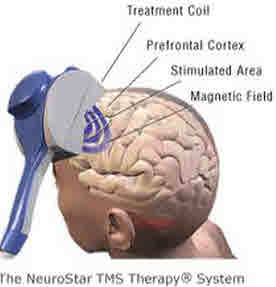 Image of the TMS instrument on top of a human head