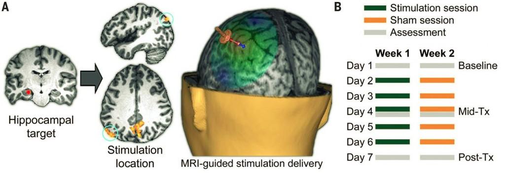 TMS Stimulation of the Parietal Cortex