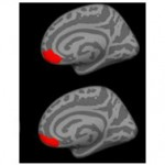 Brain Differences in Bipolar Disorder