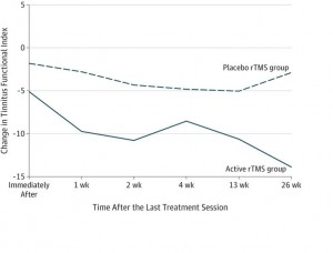 tinnitus tms treatment results