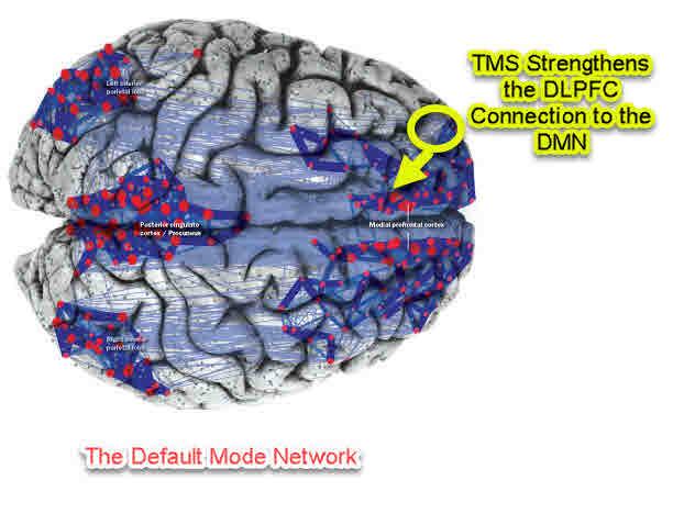 TMS - DMN Effect