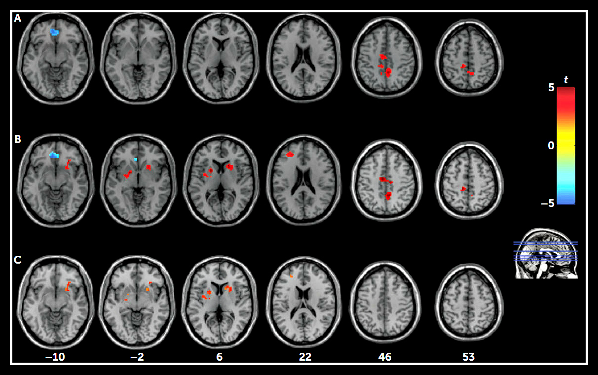 State and Trait Brain Function in Depression